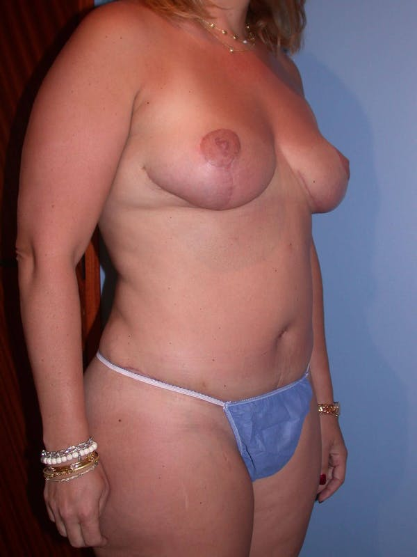 Mommy Makeover Gallery - Patient 4752258 - Image 3