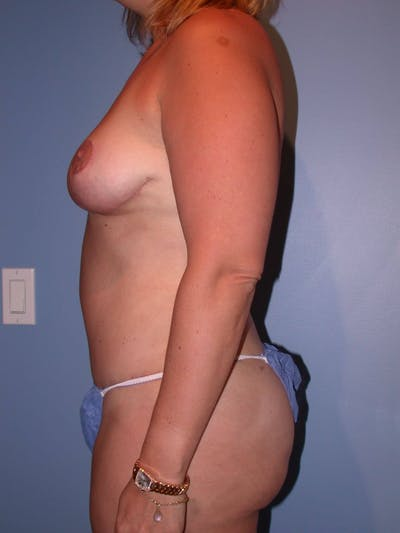 Mommy Makeover Gallery - Patient 4752258 - Image 4