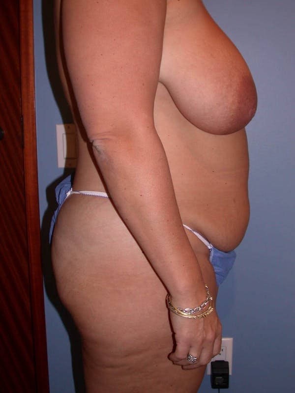 Mommy Makeover Gallery - Patient 4752258 - Image 5