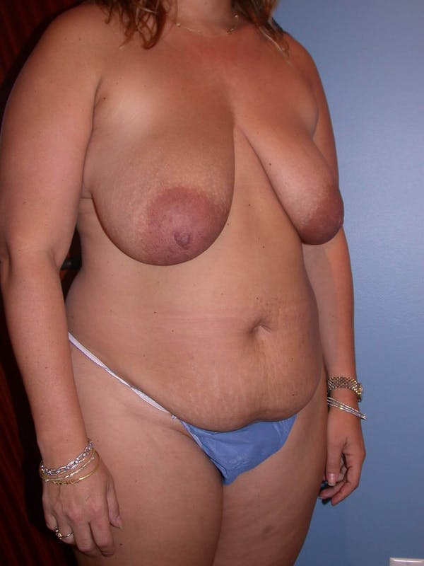 Mommy Makeover Gallery - Patient 4752258 - Image 7