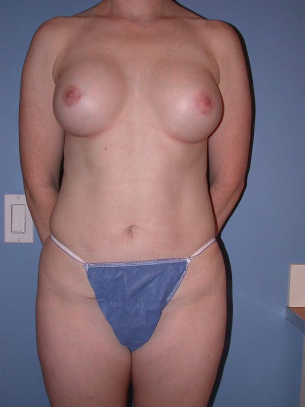 Mommy Makeover Gallery - Patient 4752259 - Image 2