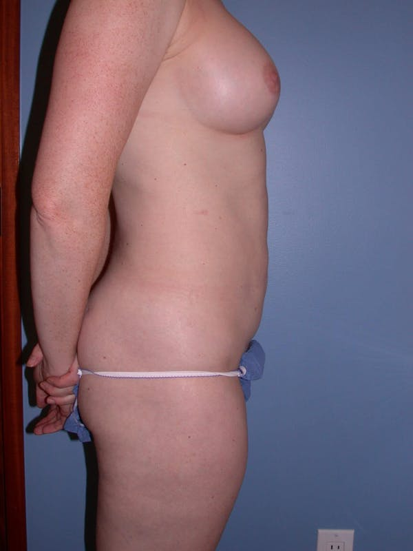 Mommy Makeover Gallery - Patient 4752259 - Image 4