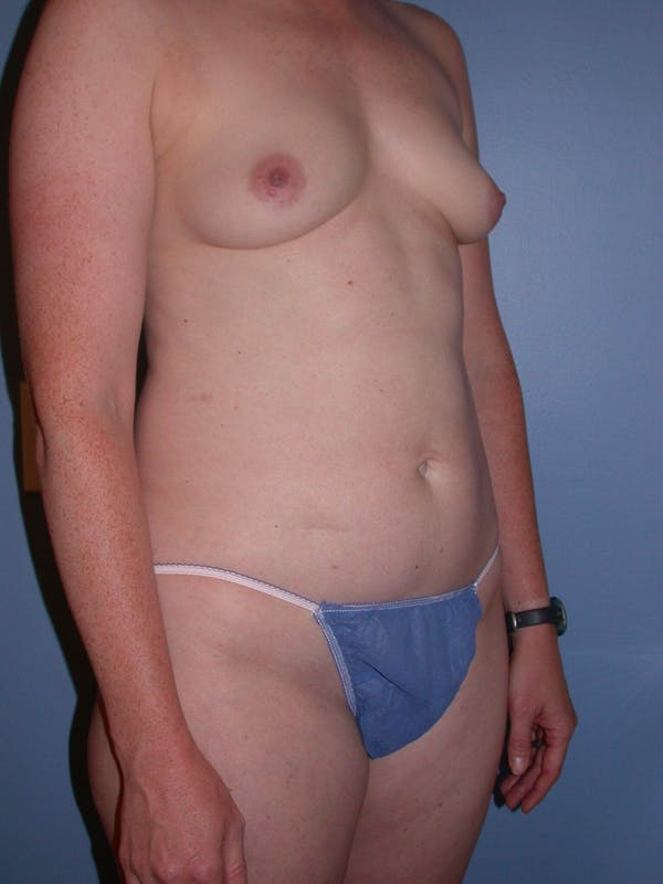 Mommy Makeover Gallery - Patient 4752259 - Image 7