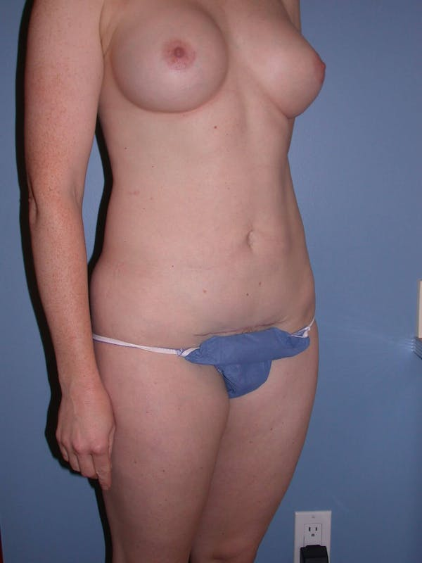 Mommy Makeover Gallery - Patient 4752259 - Image 8