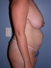 Mommy Makeover Gallery - Patient 4752260 - Image 1