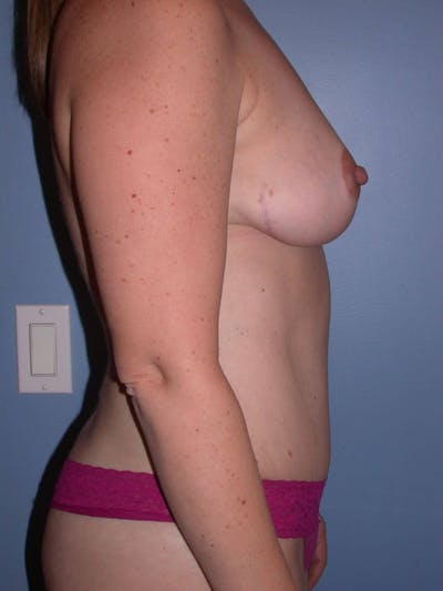 Mommy Makeover Gallery - Patient 4752260 - Image 2