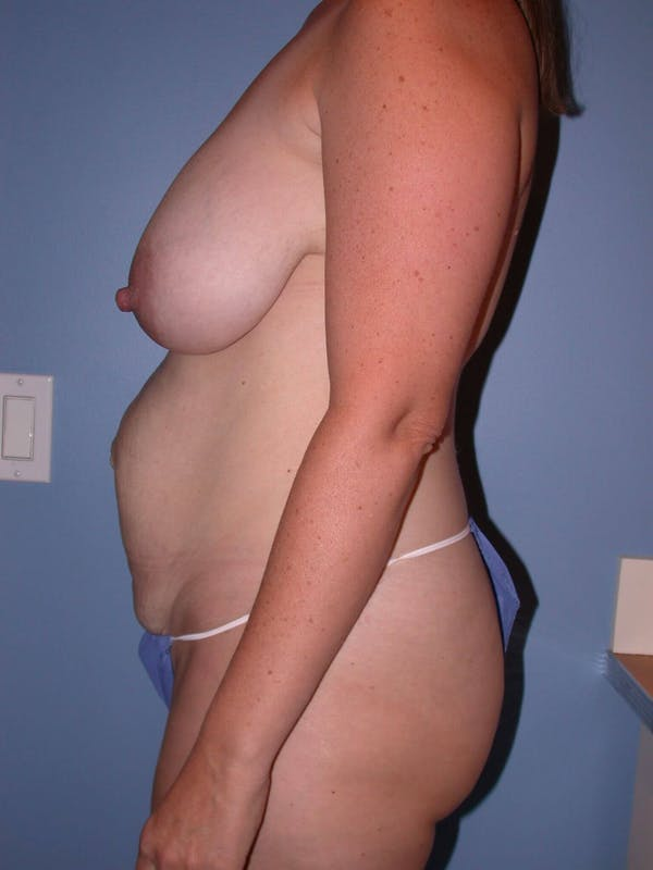 Mommy Makeover Gallery - Patient 4752260 - Image 3