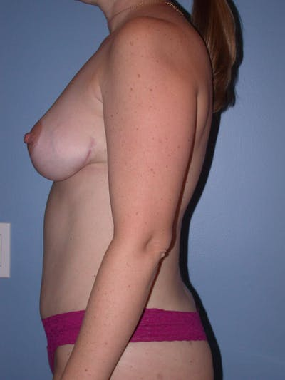 Mommy Makeover Gallery - Patient 4752260 - Image 4