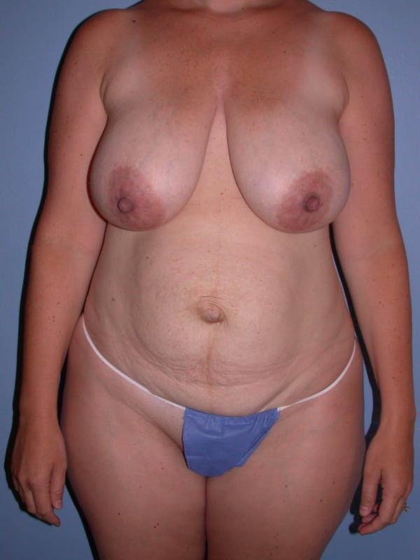 Mommy Makeover Gallery - Patient 4752260 - Image 5