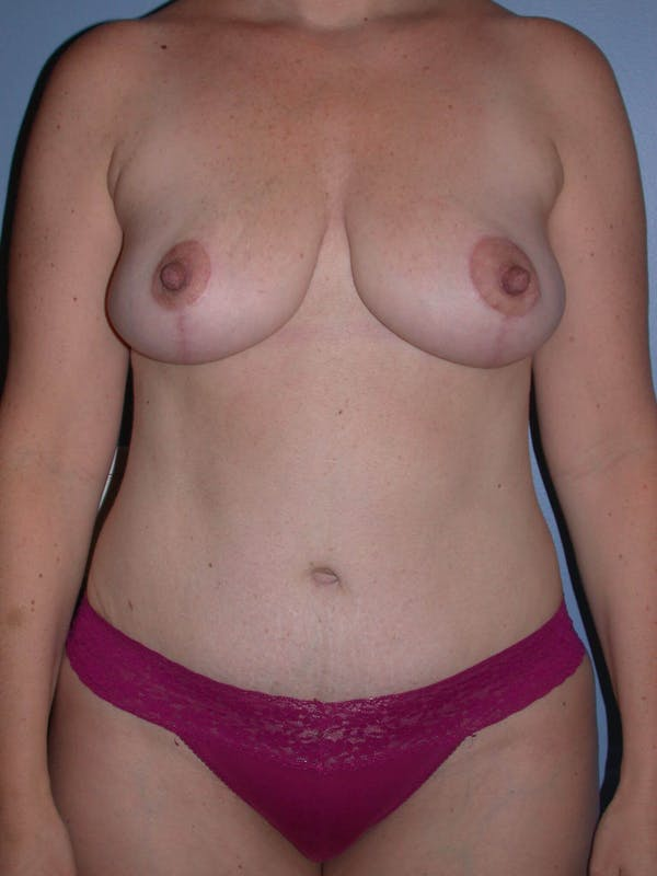 Mommy Makeover Gallery - Patient 4752260 - Image 6