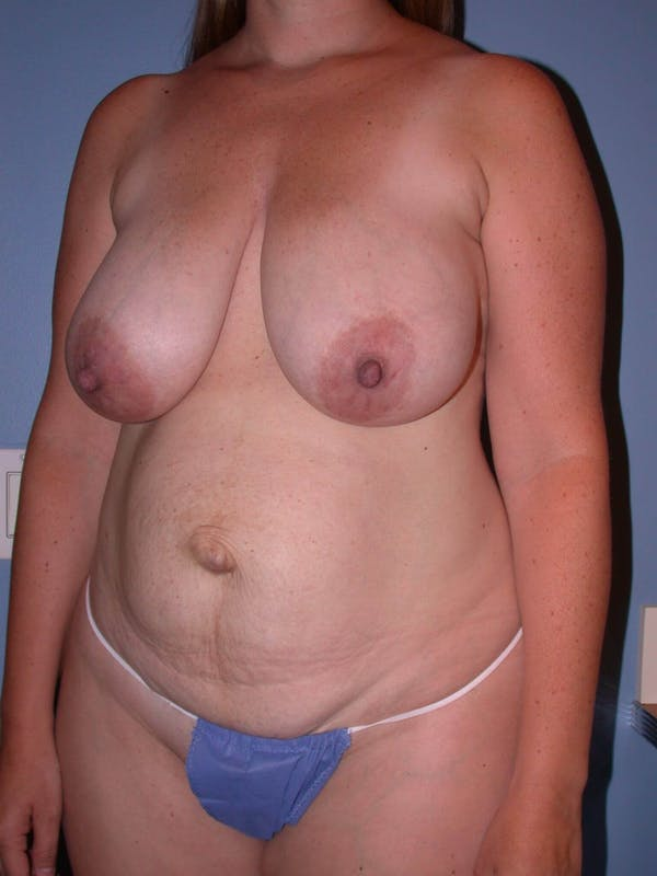 Mommy Makeover Gallery - Patient 4752260 - Image 7