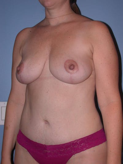 Mommy Makeover Gallery - Patient 4752260 - Image 8