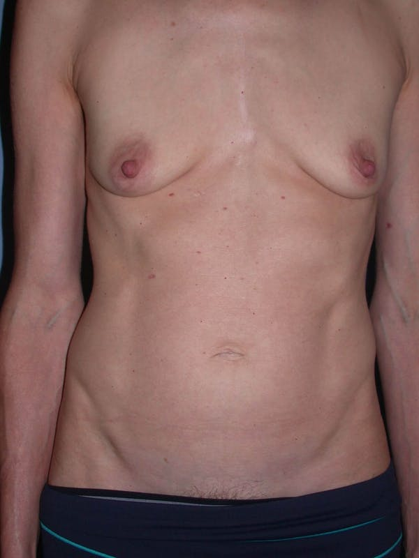 Mommy Makeover Gallery - Patient 4752261 - Image 1