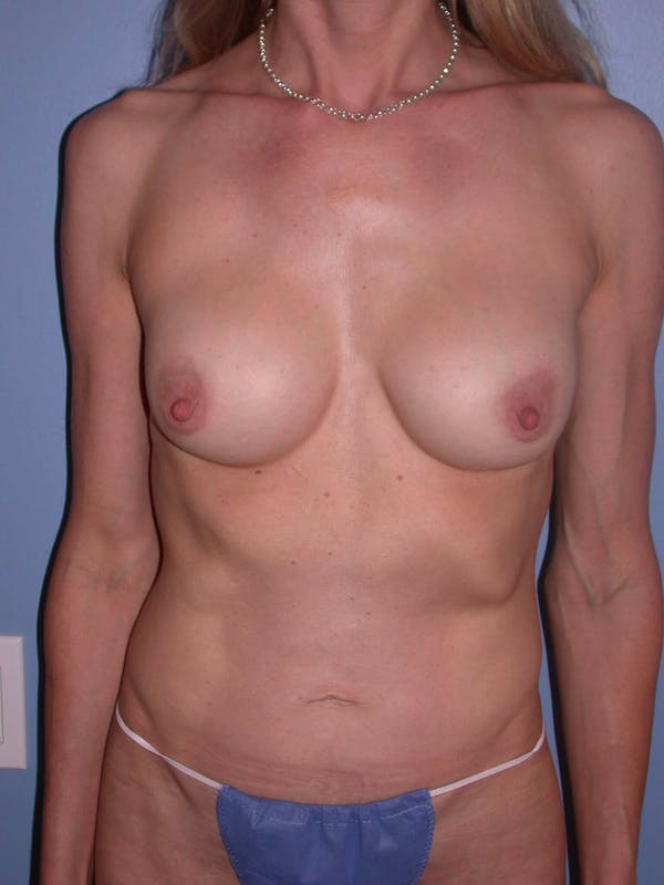 Mommy Makeover Gallery - Patient 4752261 - Image 2