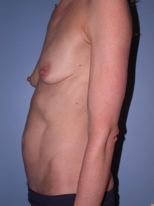 Mommy Makeover Gallery - Patient 4752261 - Image 3