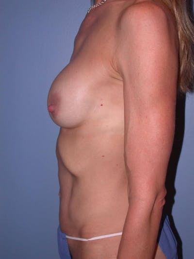 Mommy Makeover Gallery - Patient 4752261 - Image 4