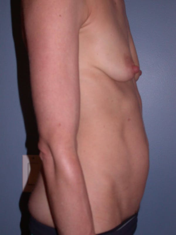 Mommy Makeover Gallery - Patient 4752261 - Image 5