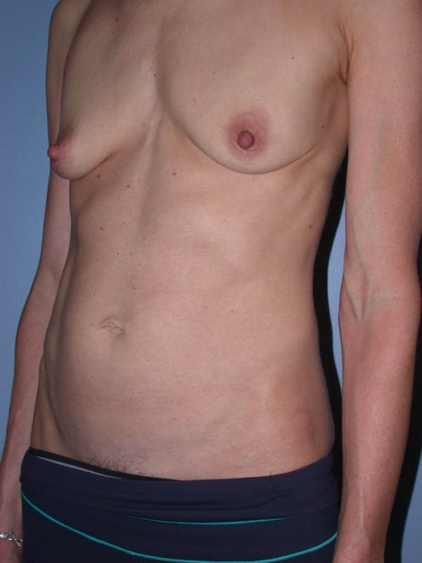 Mommy Makeover Gallery - Patient 4752261 - Image 7