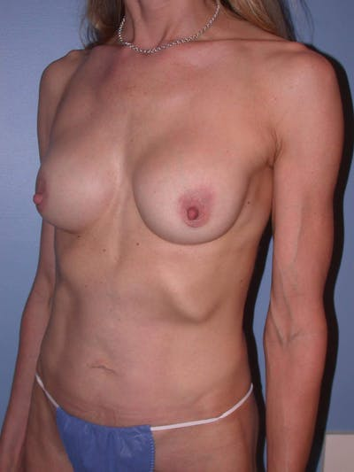 Mommy Makeover Gallery - Patient 4752261 - Image 8
