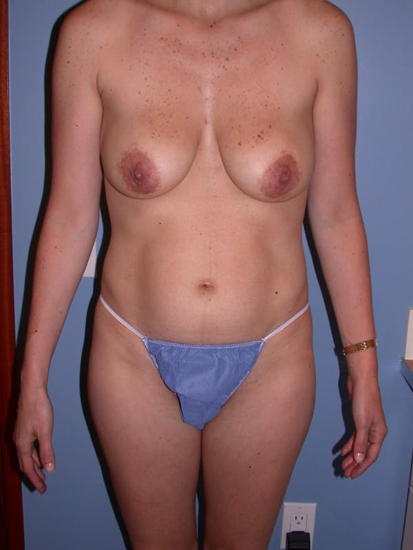 Tummy Tuck Gallery - Patient 4756852 - Image 1