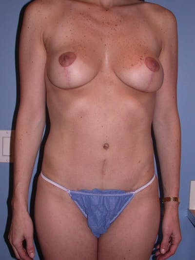 Tummy Tuck Gallery - Patient 4756852 - Image 2