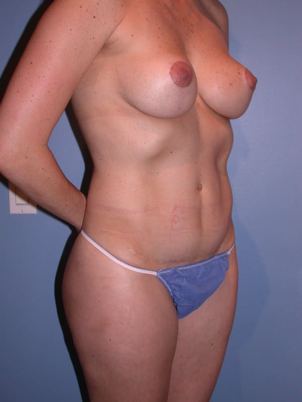 Tummy Tuck Gallery - Patient 4756852 - Image 4