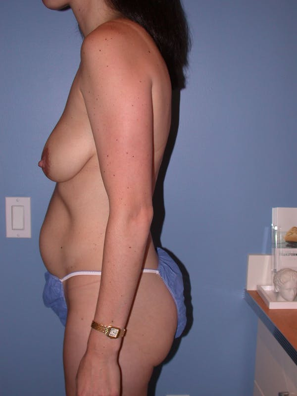 Tummy Tuck Gallery - Patient 4756852 - Image 7