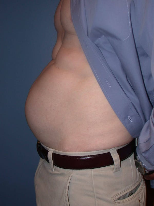 Tummy Tuck Gallery - Patient 4756854 - Image 3