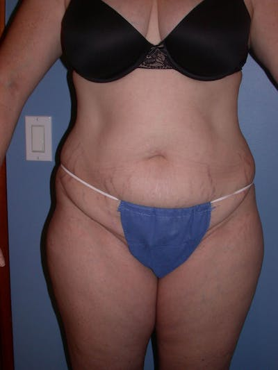 Tummy Tuck Gallery - Patient 4756858 - Image 1