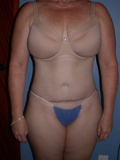 Tummy Tuck Gallery - Patient 4756858 - Image 2
