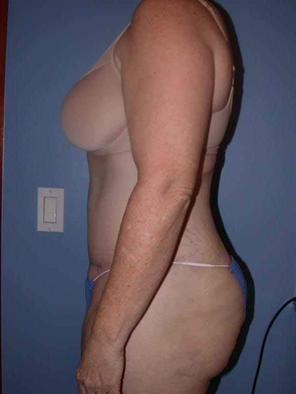 Tummy Tuck Gallery - Patient 4756858 - Image 6