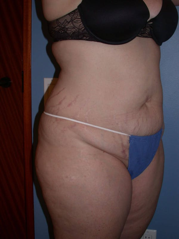 Tummy Tuck Gallery - Patient 4756858 - Image 7