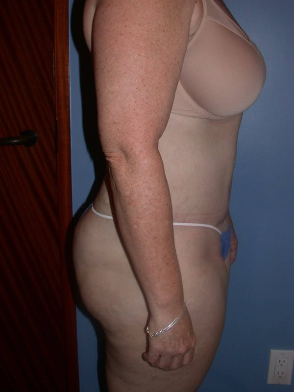 Tummy Tuck Gallery - Patient 4756858 - Image 8