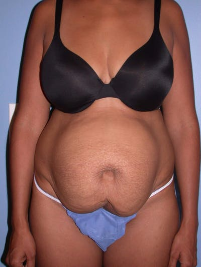 Tummy Tuck Gallery - Patient 4756862 - Image 1
