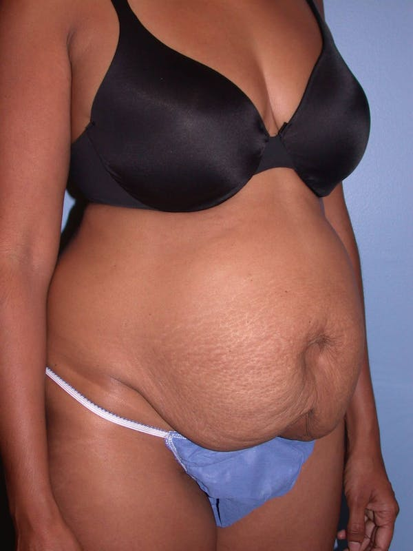 Tummy Tuck Gallery - Patient 4756862 - Image 7
