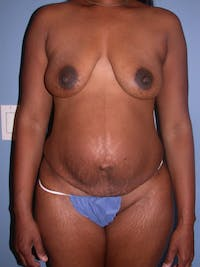 Tummy Tuck Gallery - Patient 4756870 - Image 1