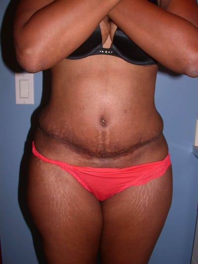 Tummy Tuck Gallery - Patient 4756870 - Image 2