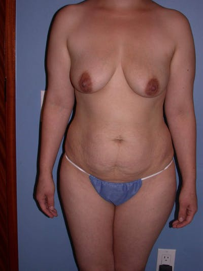 Tummy Tuck Gallery - Patient 4756879 - Image 1