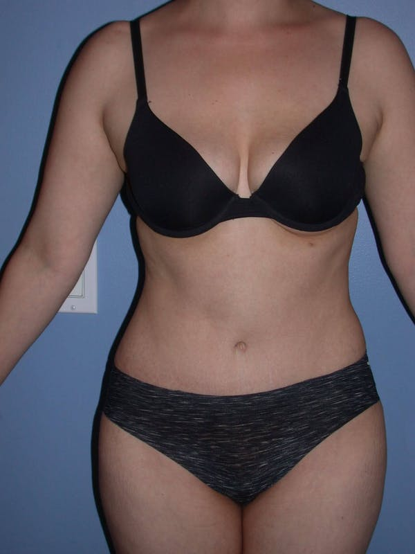 Tummy Tuck Gallery - Patient 4756879 - Image 2