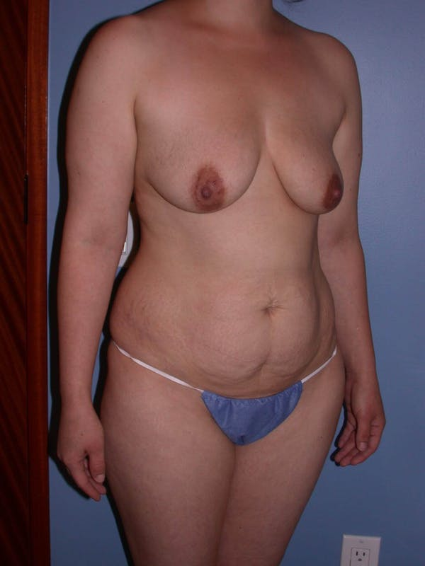 Tummy Tuck Gallery - Patient 4756879 - Image 3