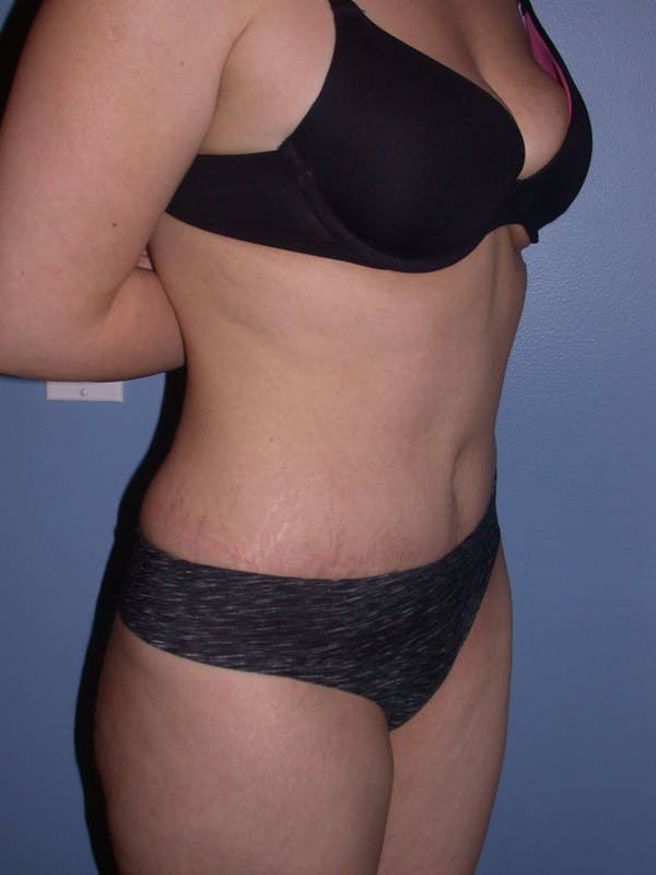 Tummy Tuck Gallery - Patient 4756879 - Image 4