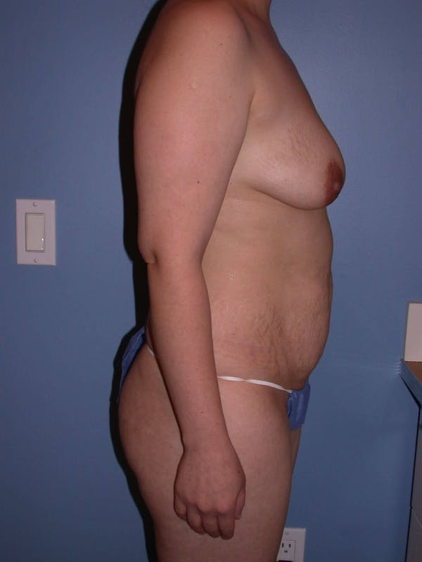 Tummy Tuck Gallery - Patient 4756879 - Image 5