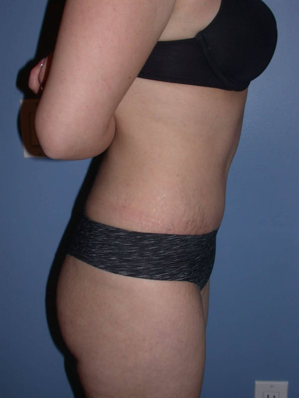 Tummy Tuck Gallery - Patient 4756879 - Image 6