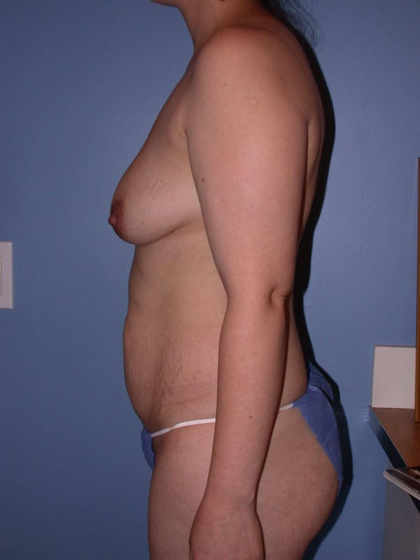 Tummy Tuck Gallery - Patient 4756879 - Image 7