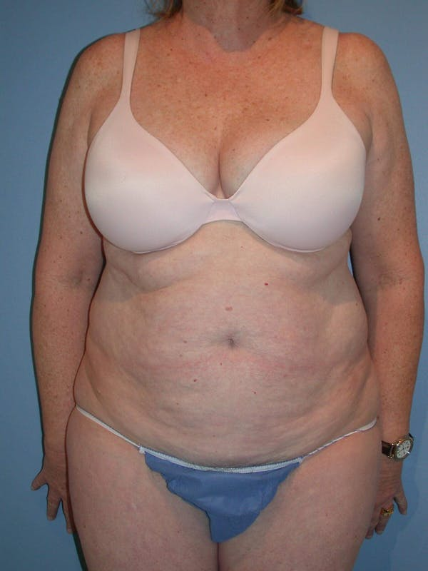 Tummy Tuck Gallery - Patient 4756884 - Image 1
