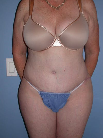 Tummy Tuck Gallery - Patient 4756884 - Image 2