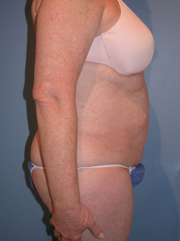Tummy Tuck Gallery - Patient 4756884 - Image 3