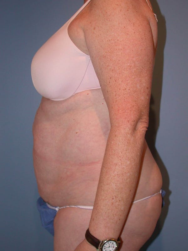 Tummy Tuck Gallery - Patient 4756884 - Image 5