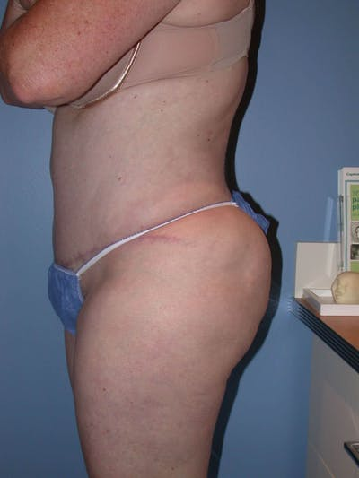 Tummy Tuck Gallery - Patient 4756884 - Image 6