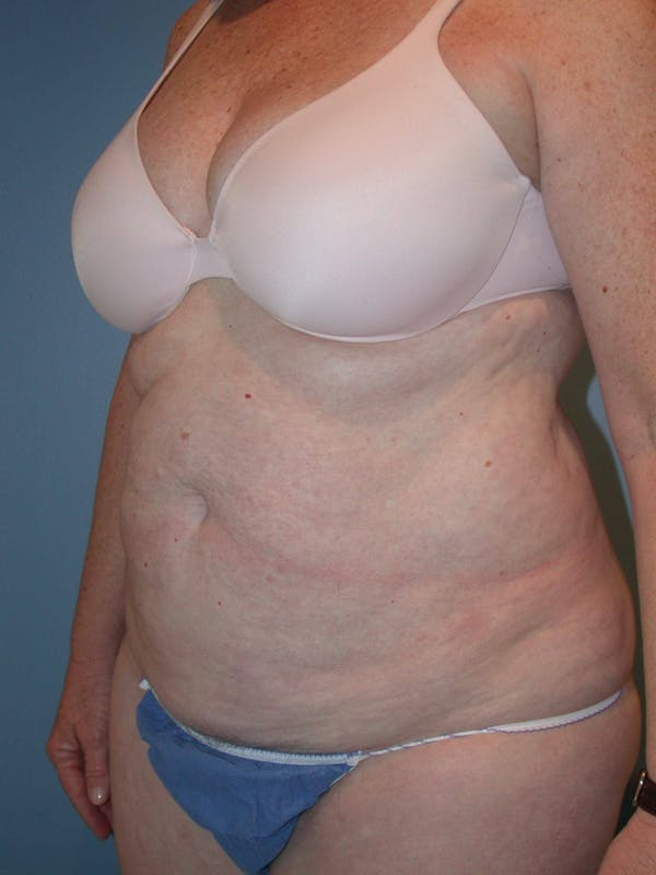 Tummy Tuck Gallery - Patient 4756884 - Image 7